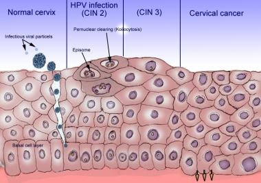 hpv reactive means)
