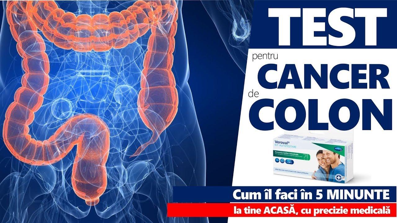 simptome cancer colon femei)