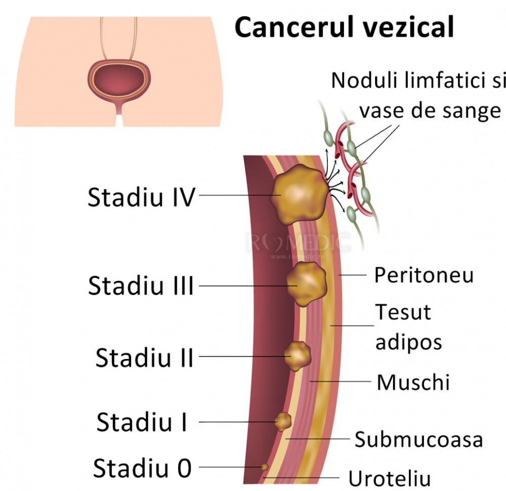 Un nou medicament împotriva cancerului la vezica urinară a fost testat cu succes