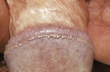 ceai de detoxifiere a organismului cancer bucal tratamiento