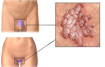 hpv szemolcs noi nemi szerven parazitii intestinali se vad la ecografie