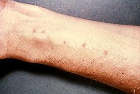 Papillomatosis skin rash