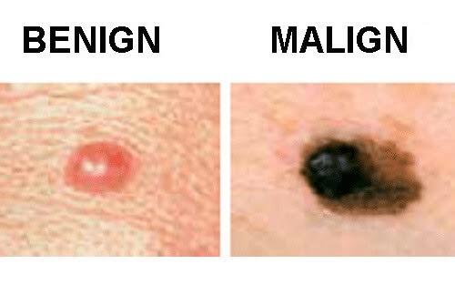 Cancerul poate afecta orice zonă de piele, chiar şi zona genitală sau unghială