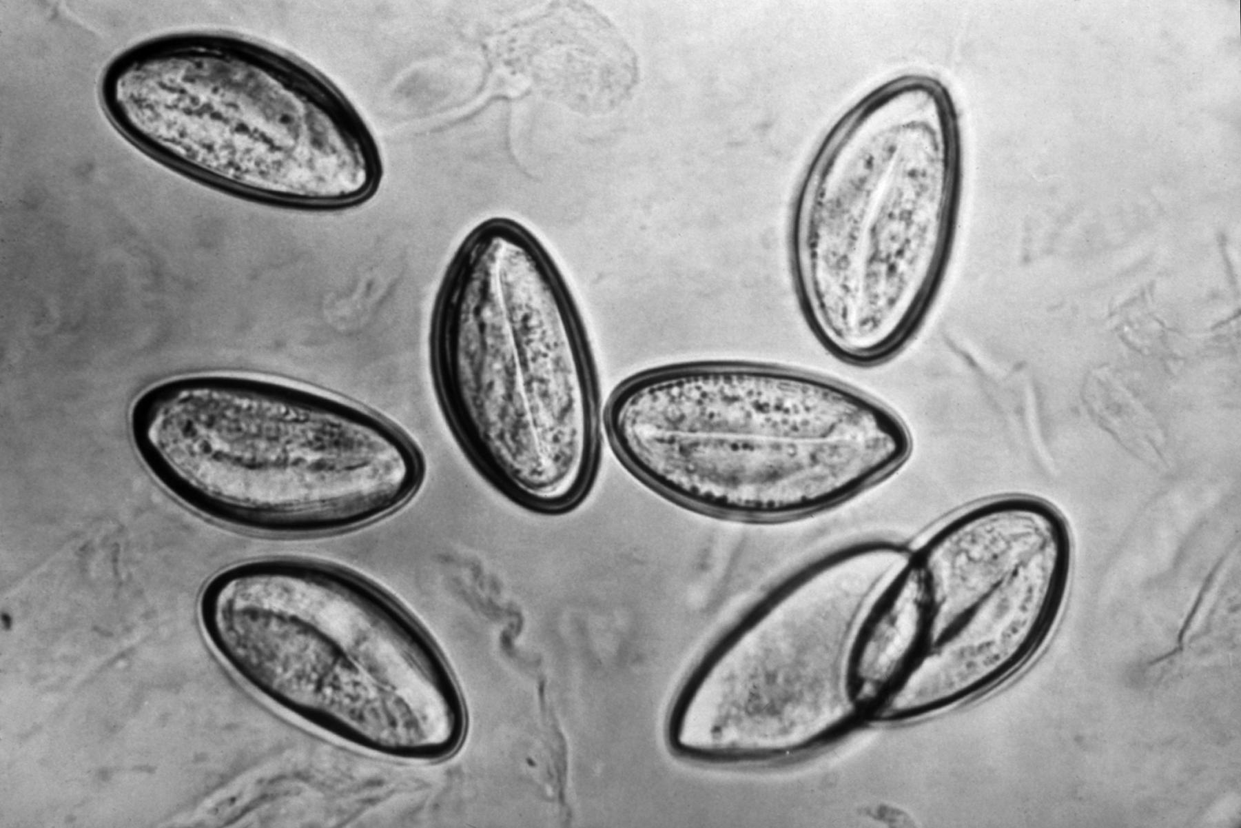 Oxiuroza (oxiuri) Enterobius vermicularis = oxyuris vermicularis