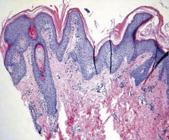 Squamous papilloma of lip. Throat Cancer and the Human Papilloma Virus oxiurul vierme