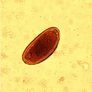 enterobius vermicularis perianal