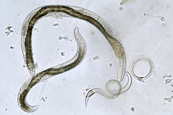tipuri de viermi pentru oameni