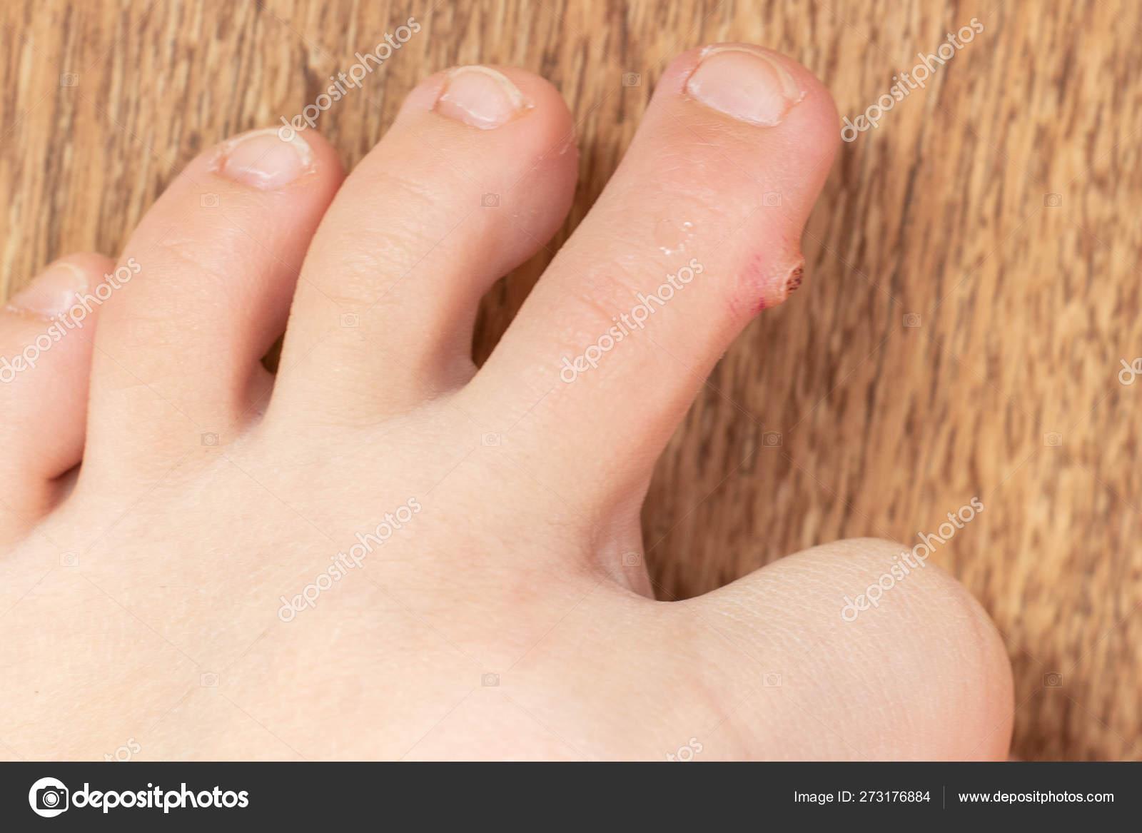 Simptome ale verucilor plantare, Meniu cont utilizator