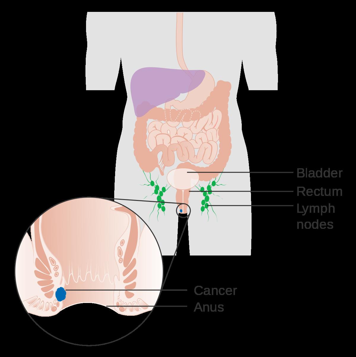 does hpv cause rectal cancer vierme de pământ la om