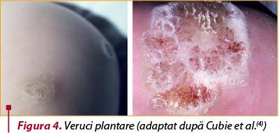 human papilloma virus spread through papillomatosis reticularis et confluens
