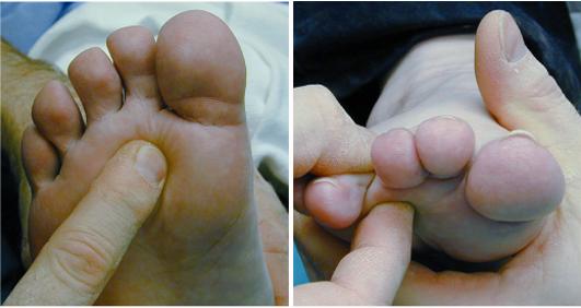 durere de picior între degetele de la picioare)