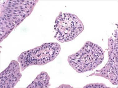 Urothelial papillomas, Transitional cell papilloma of the bladder