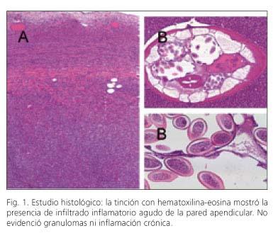 oxiuros apendicitis cu temperatura verucilor genitale