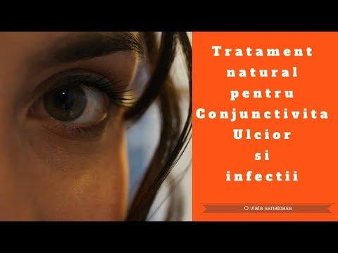 tratamentul paraziților în ochi)