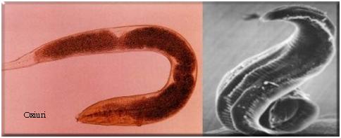 Paraziți în tratamentul femeilor. Care sunt cauzele infectiei cu oxiuri?