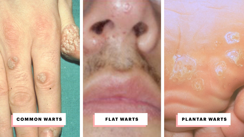 cum se vindecă HPV