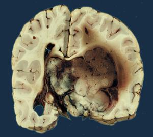 choroid papilloma tumor)