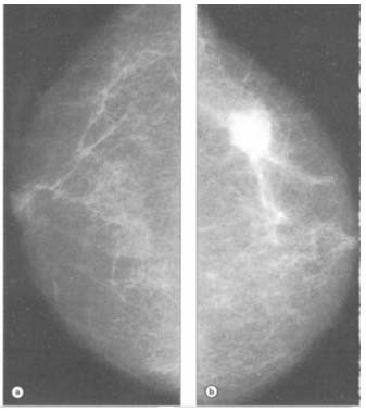 cancerul mamar stadii
