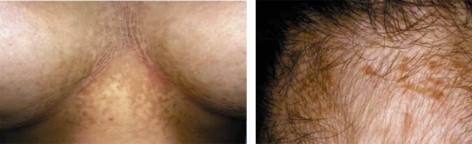 papilomatosis piel definicion)