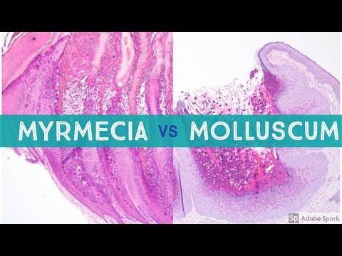 Acoelomează platyhelminthes, Diferența principală - Platyhelminthes vs Nematoda