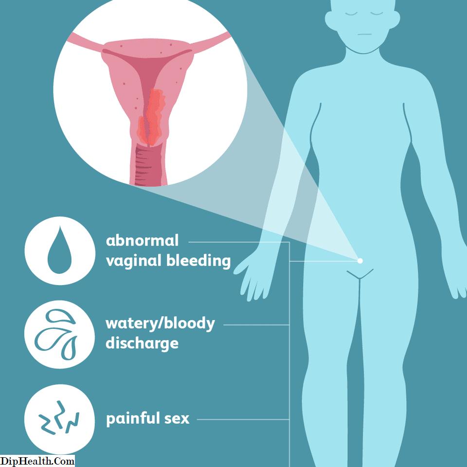 metastatic cancer ke lakshan hpv virus priznaky u zen