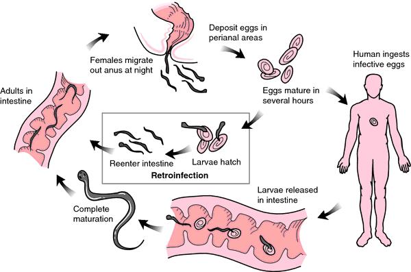 enterobius vermicularis definition)