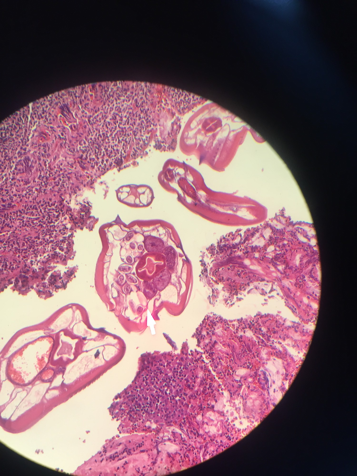 enterobius vermicularis pathology)