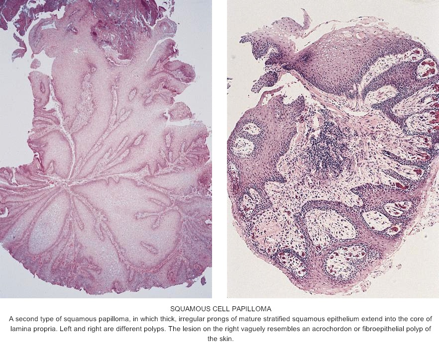 esophageal polyp squamous papilloma)