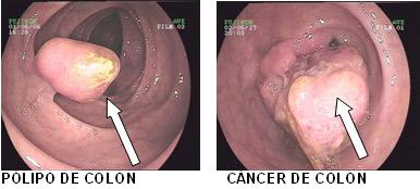 Vitamina D creste sansele de supravietuire ale bolnavilor de cancer de colon- studiu