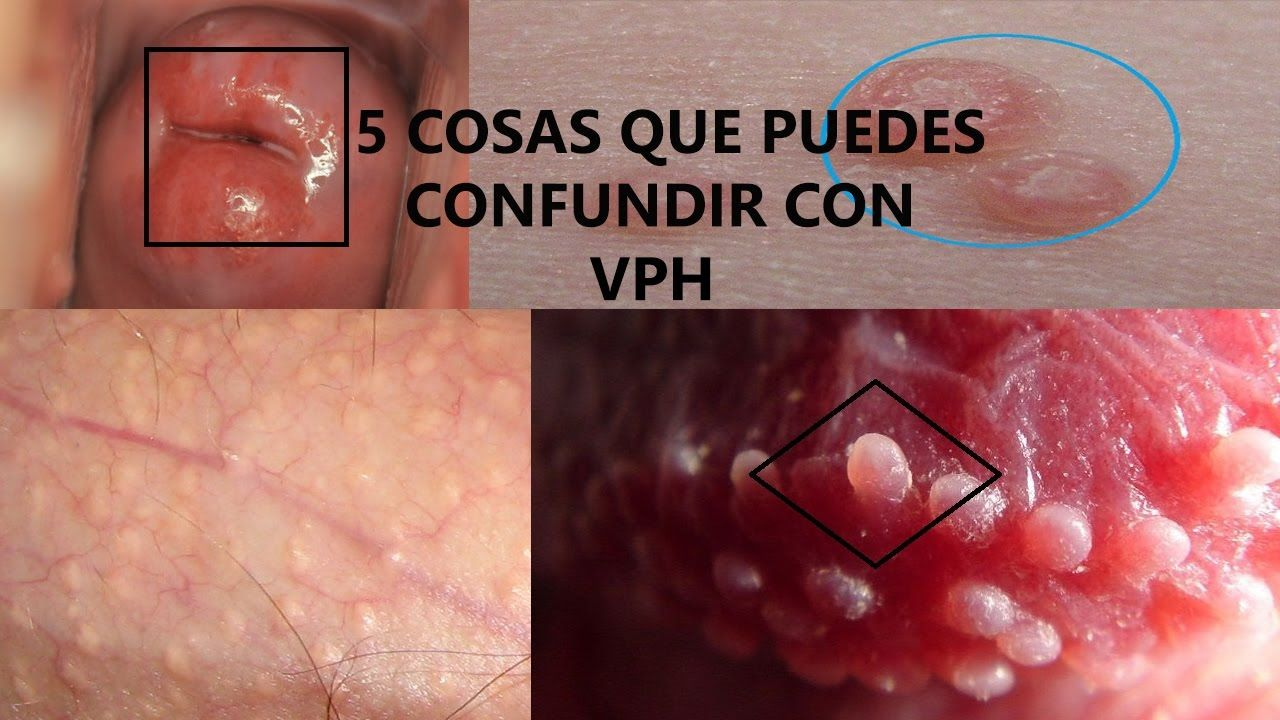 diferencia entre herpes y papiloma)