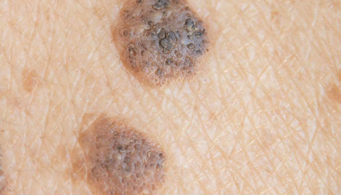 Skin warts on face treatment. Wart on face skin cancer - Squamous papilloma palate treatment