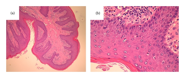 what is fibroepithelial papilloma wart treatment uk