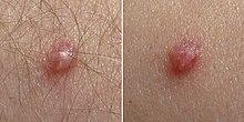 papilloma virus sintomi nelle donne)