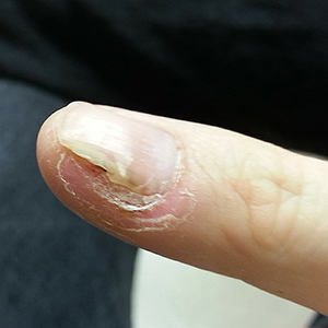 Wart treatment ayurvedic medicine, Mitos y verdades del papiloma humano doenca oxiurose o que e