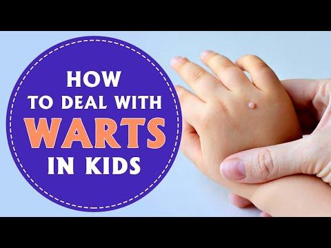 wart on foot kid