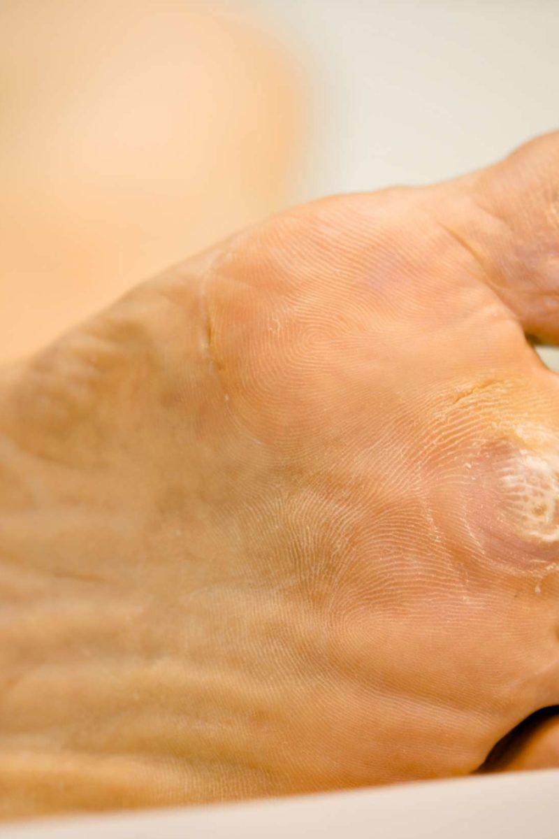 Wart foot pain
