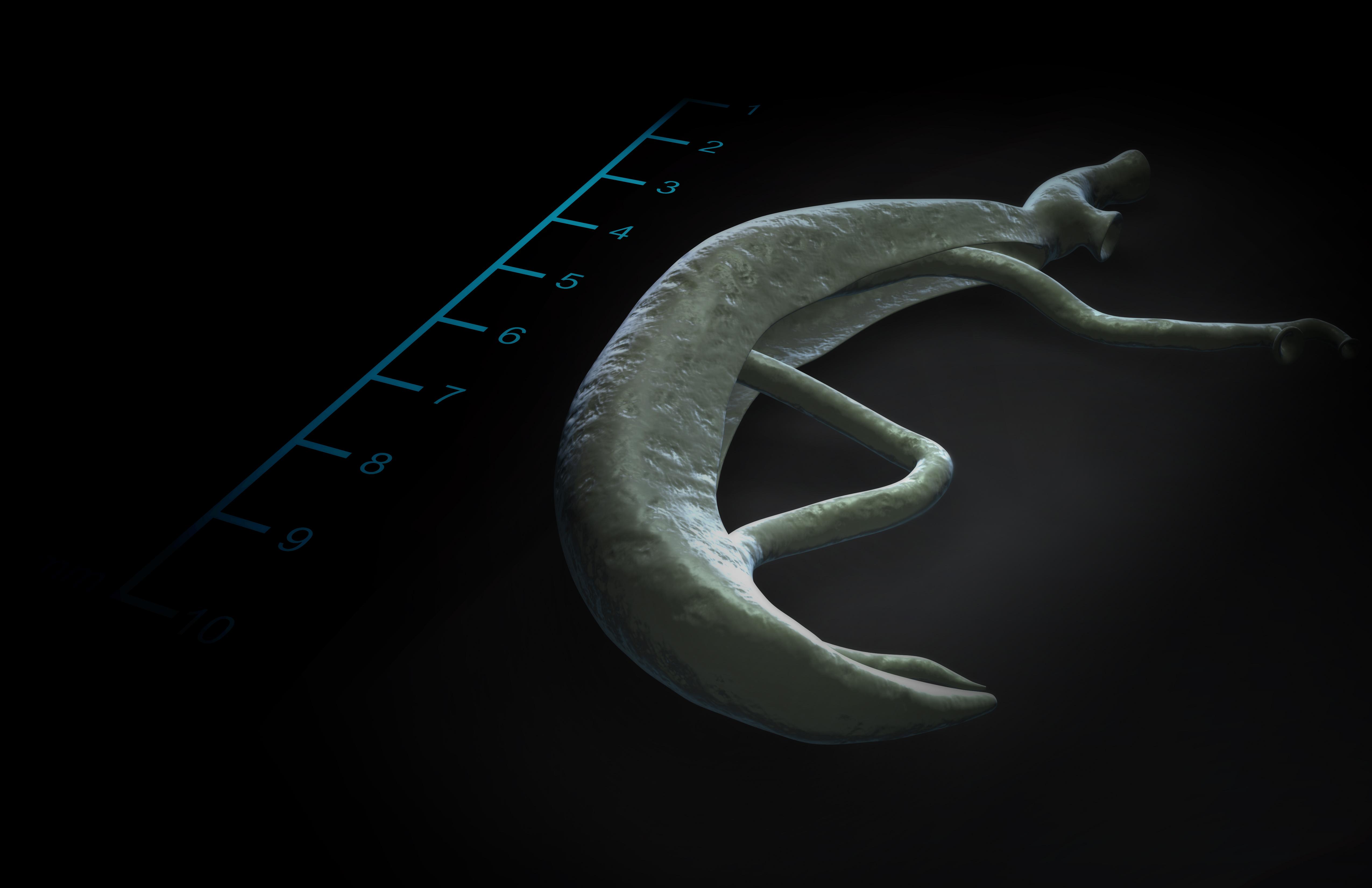schistosomiasis jamaica