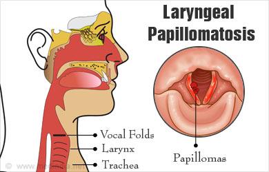 papilloma in larynx)