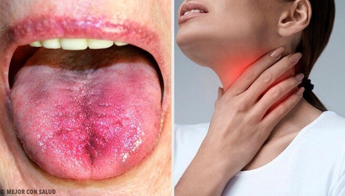 Durerea in gat: remedii naturiste eficiente