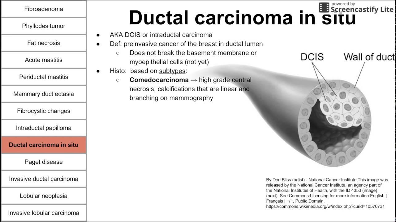 intraductal papilloma no lump)