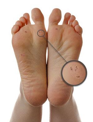 verruca foot soak
