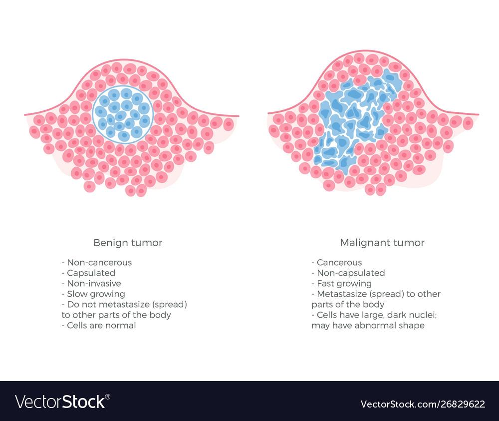 cancer benign neoplasms dieta de detoxifiere cu sucuri naturale