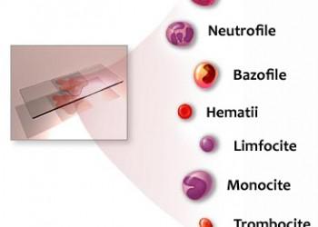 paraziți de sânge cum se reduc papiloamele de pe corp