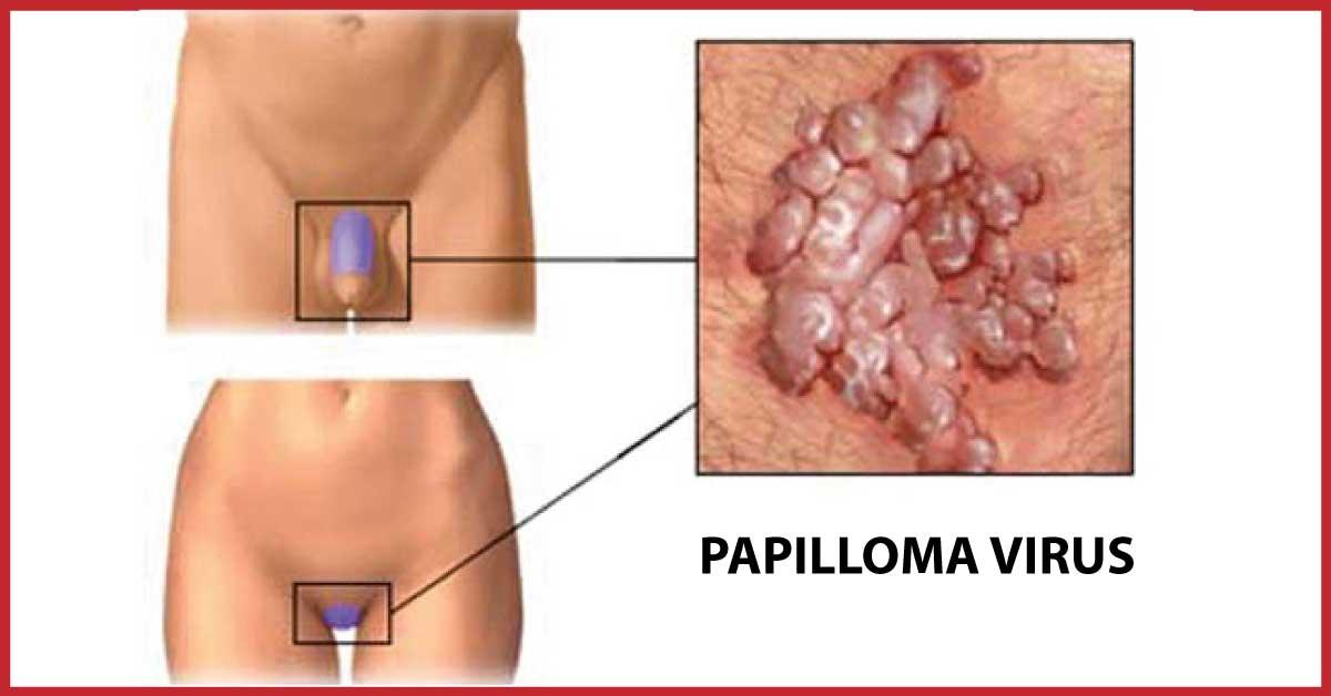 genitali papilloma virus
