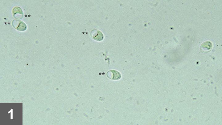 Cât durează giardia în sol, Examen coproparazitologic - Synevo