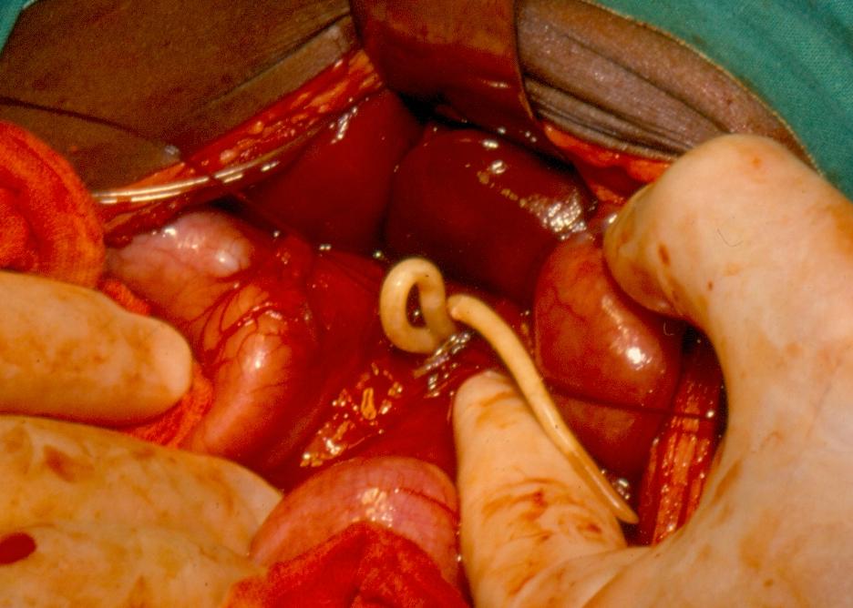 helminthiasis tapeworm)