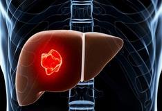 hepatic cancer emedicine)