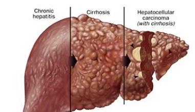 hepatic cancer hcc)