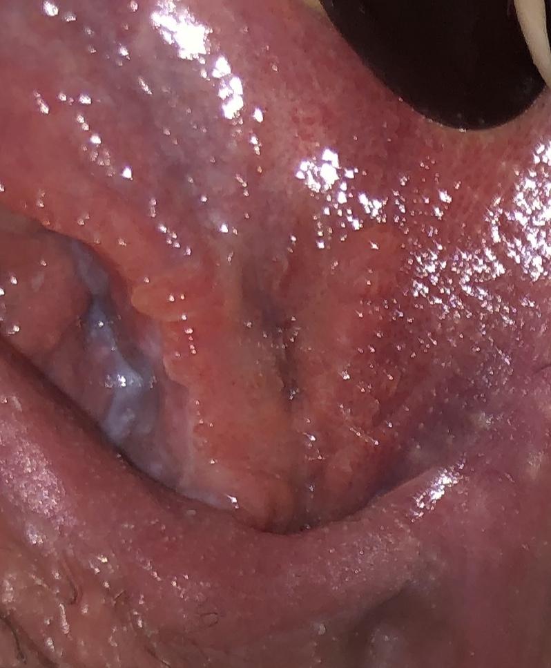 hpv causes herpes papilom și paraziți