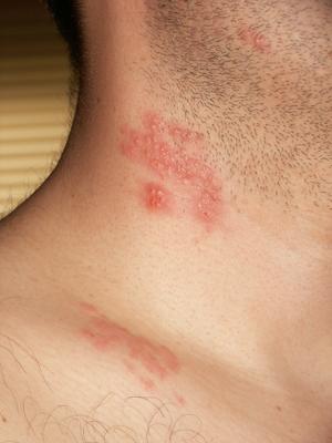 Sanatatea TV: Confuzie Intre HPV Si Herpes Simplex - triplus.ro